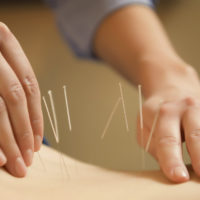 Los Angeles Acupuncture: Introducing Sherry Patterson